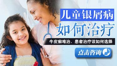 怎么治疗儿童银屑病