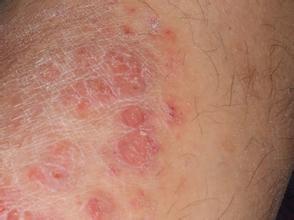 患上牛皮癣出汗对病情有影响吗