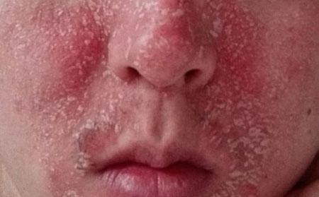 孩子脸上牛皮癣一块一块的红疹怎么回事